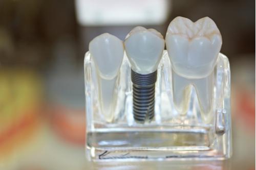 prothésiste dentaire Essonne
